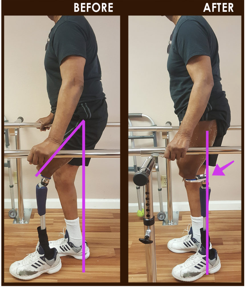 hip flexion case study prosthetics