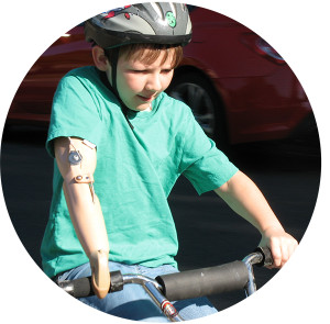 pediatric prosthetic specialists
