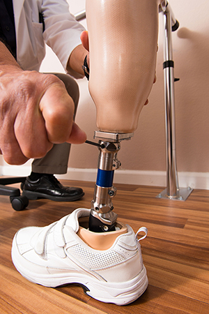 Prosthetic Ankle Adjustment